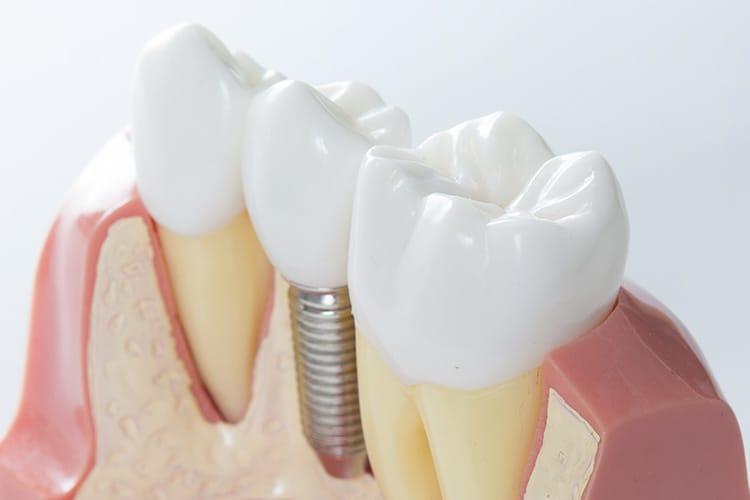 implanty zębow krakow